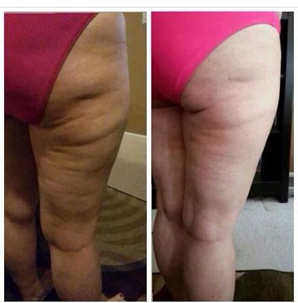 anti cellulite cuisse