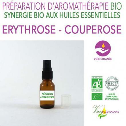 couperose et huile essentielle