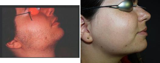 epilateur electrique visage avis
