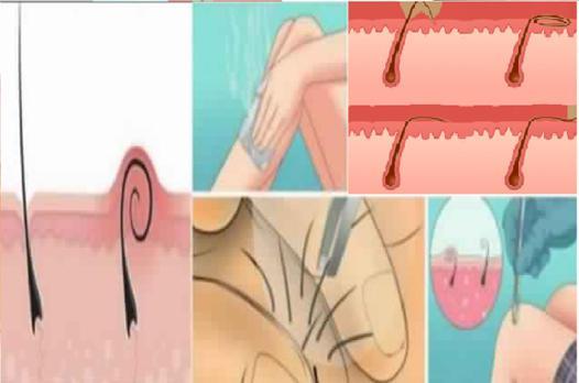 éviter les poils incarnés
