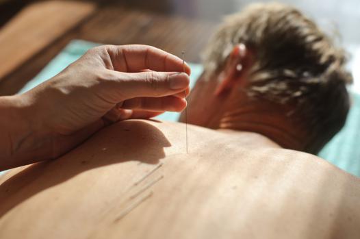 ronflement et acupuncture
