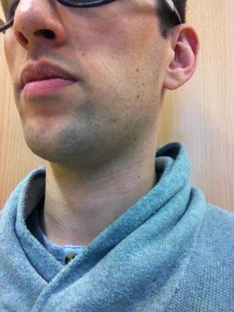 barbe dure