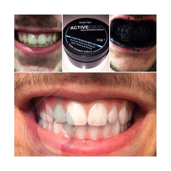 charbon blanchir les dents